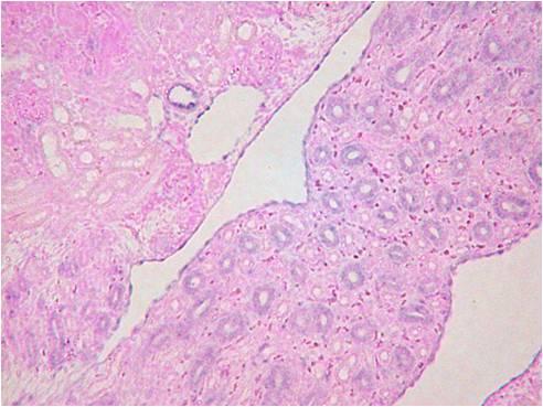 3: 腎臓