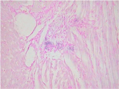 2: 毛細血管