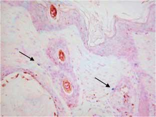 皮膚炎モデルマウス(8W, ♂) 皮膚