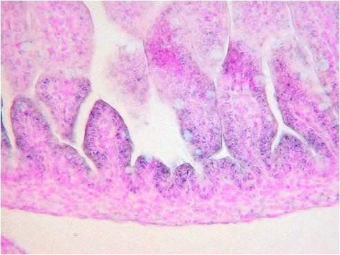 1: 小腸
