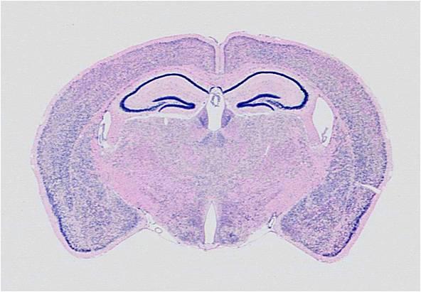 GS-brain