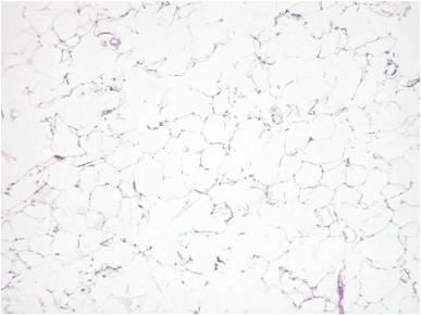 white adipocyte1