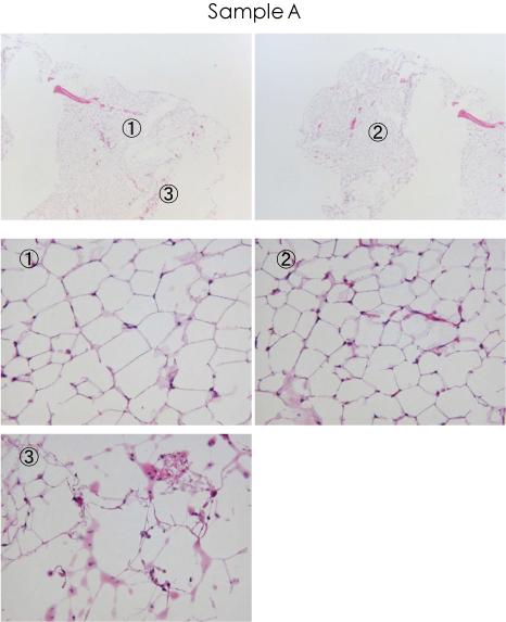 white-adipocyte4-frozen