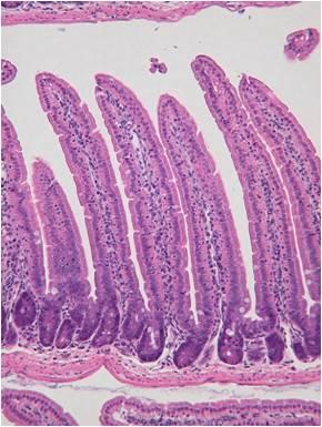 腸管ロール