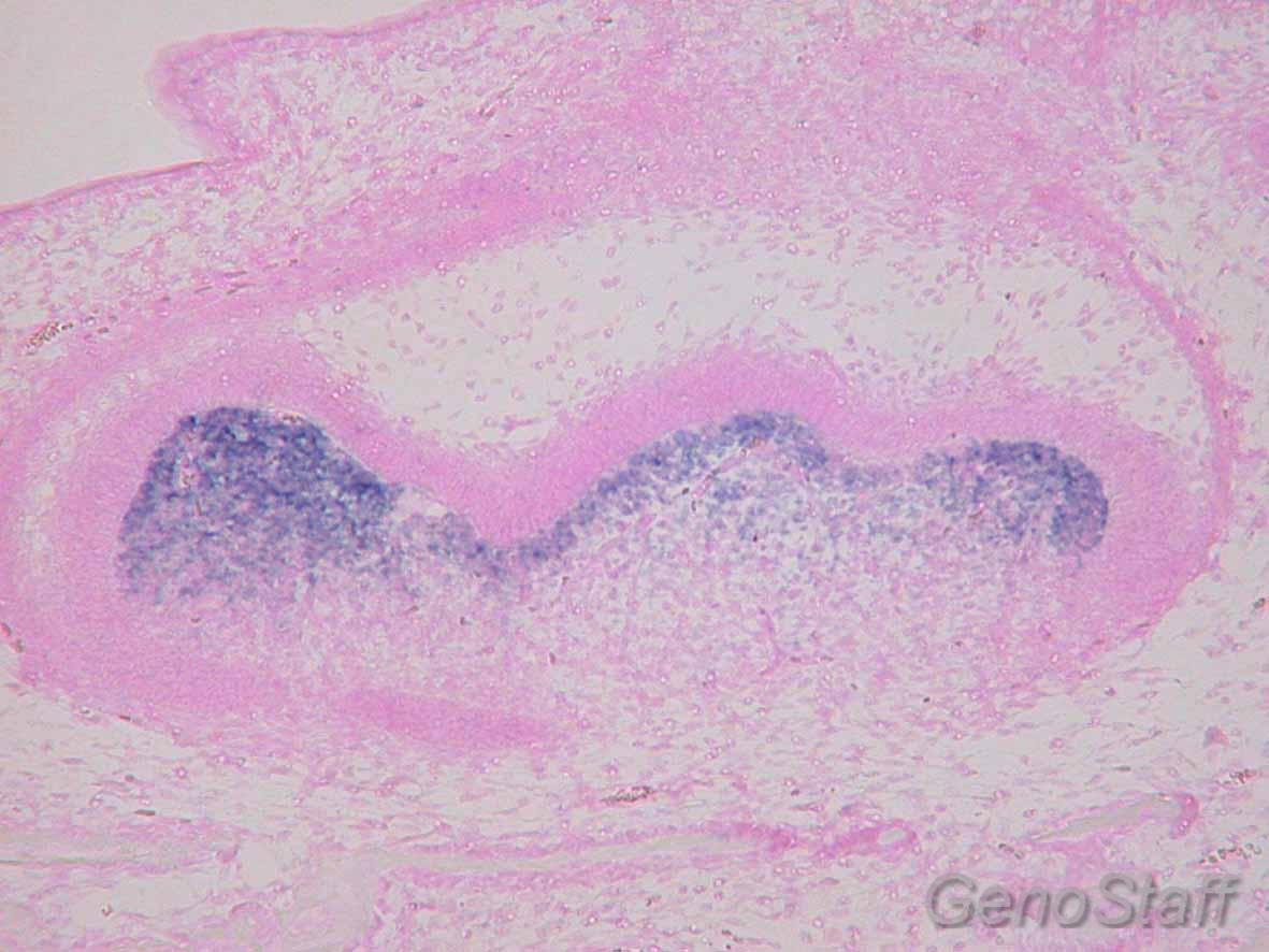 E17.5 歯胚