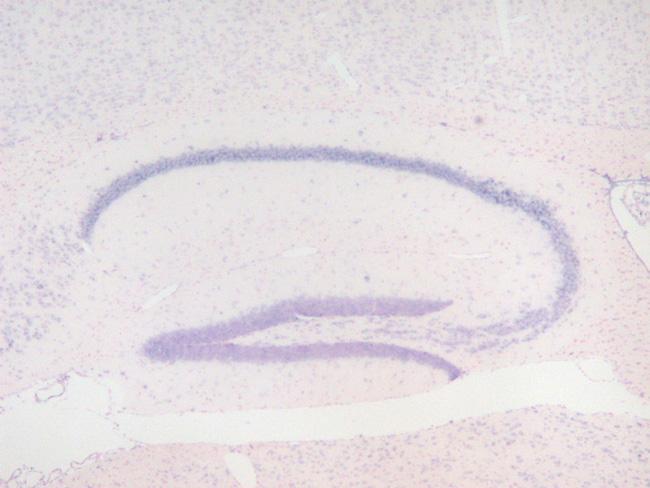 海馬/歯状回