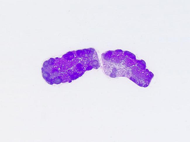 腸間膜リンパ節