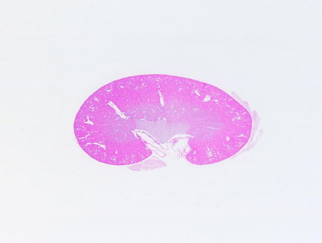 腎臓 #2