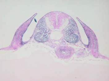 メダカembryo