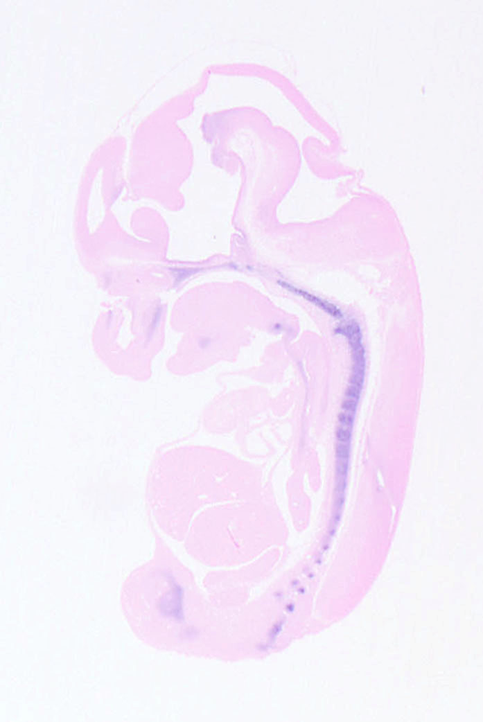 遺伝子A 12.5日